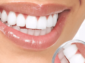 Как вернуть зубы за один день
