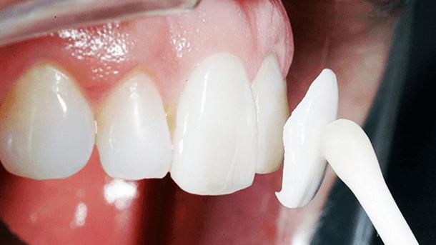 Какие накладки на зубы лучше выбрать