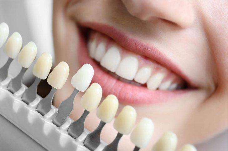 Натуральная улыбка: чем отличаются композитные и керамические виниры, какие лучше выбрать?