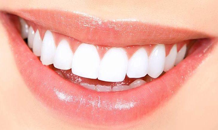 Виниры на зубы — красивая улыбка на всю жизнь
