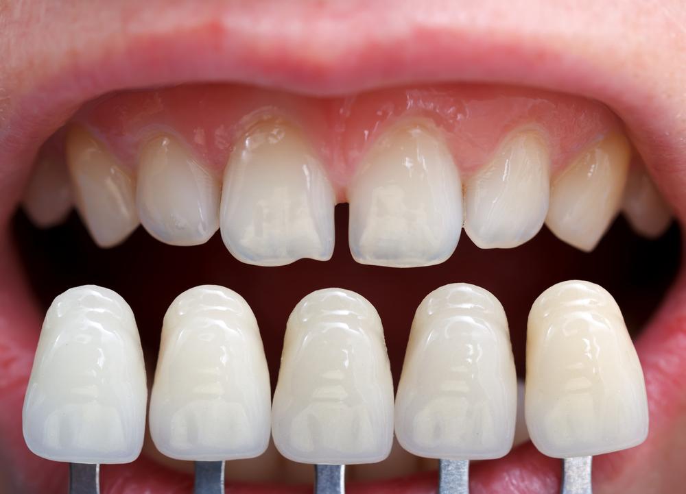 Исправление любых косметических дефектов улыбки