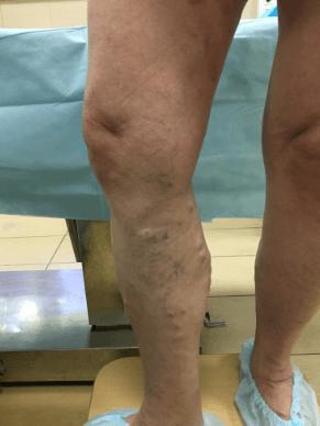 Причины варикозной болезни