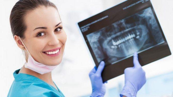 Рентген зубов: особенности, назначение, специфика проведения